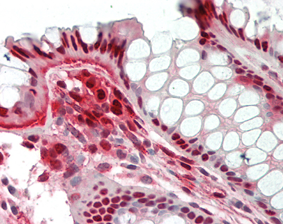 Immunohistochemical staining of Nampt using anti-Nampt (Visfatin/PBEF), mAb (OMNI379) (Prod. No. AG-20A-0034) in formalin-fixed and paraffin-embedded (FFPE) human colon tissue (15µg/ml).