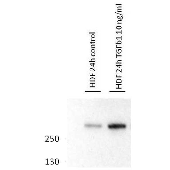 Western blot analysis of human dermal fibroblast whole cell lysate, untreated (left) and treated with TGF-β1 (right) using anti-Fibronectin (EDA), mAb (blocking) (IST-9) (preservative free) (AG-20B-6001PF). Lysates/proteins at 10 µg per lane.  A goat anti-mouse HRP-conjugated monoclonal secondary antibody was used.